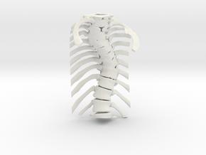 Thoracic Spine - Scoliosis (SKU 006) in White Natural Versatile Plastic