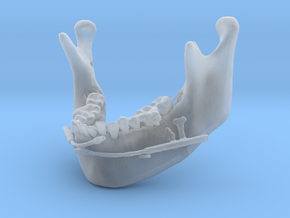 Subject 2b | Mandible + Distractors (Before IMDO) in Smooth Fine Detail Plastic