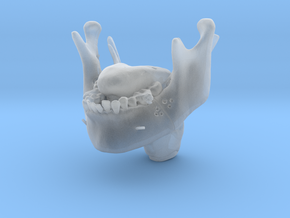 Subject 2g | IMDO Mandible + Tongue (Before) in Smooth Fine Detail Plastic