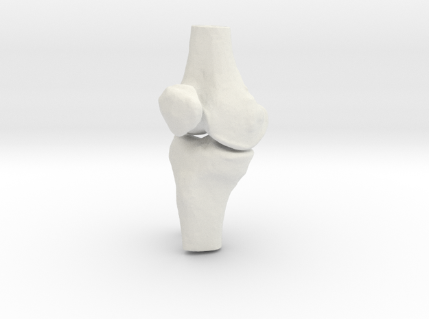 Knee - Proximal Tibia Fracture in White Natural Versatile Plastic