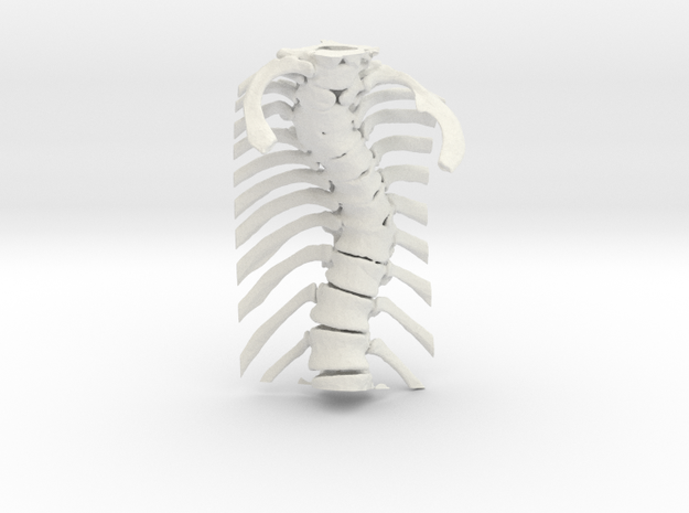 Thoracic Spine - Scoliosis (SKU 006) in White Natural Versatile Plastic