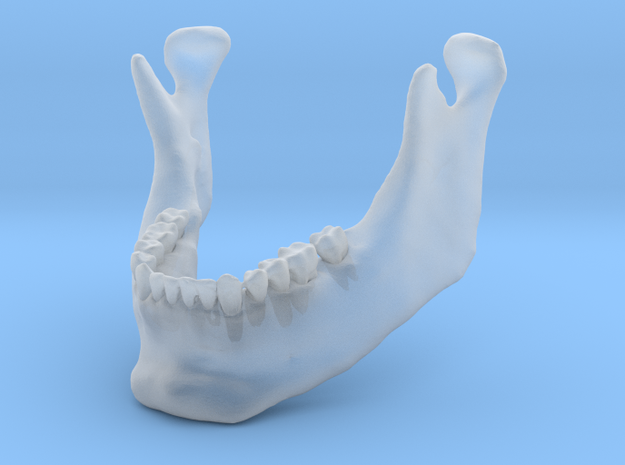 Subject 3b | Mandible (After) in Smooth Fine Detail Plastic