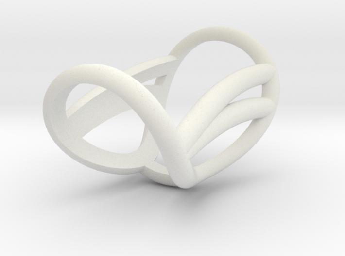 Ring Splint for j_vanmierlo D13D15L28 3d printed