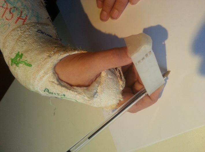 prothesis to write 3d printed