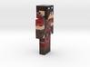 6cm | DynaxAllstar 3d printed