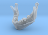 Subject 2i   Mandible + Distractors (After IMDO) 3d printed