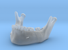 Subject 2o | Mandible (After IMDO) 3d printed